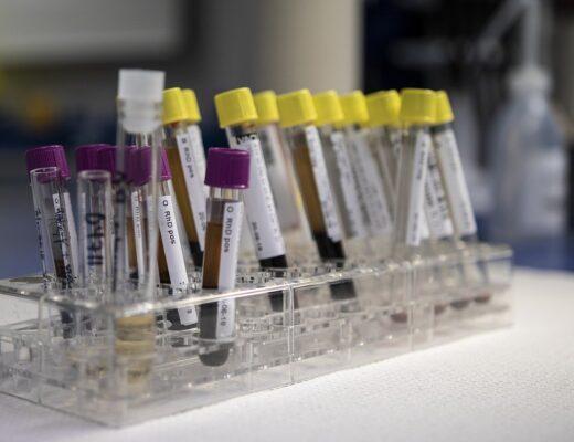 10 paşi pentru pregătirea şi recoltarea de sânge pentru analize